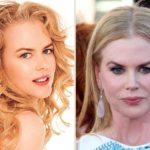 9. Nicole Kidman