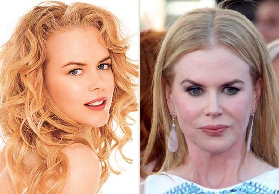 9.Nicole Kidman