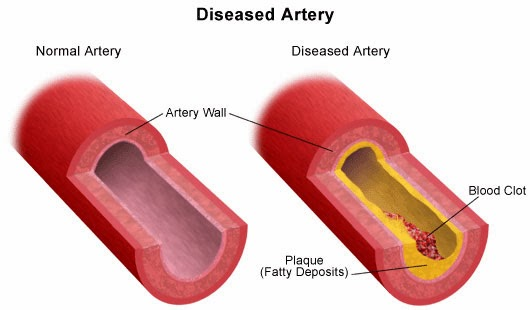VITAMINS AND MINERALS FOR ARTERIES ELASTICITY