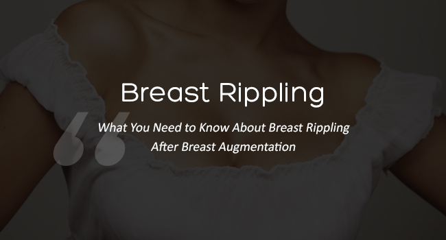 Breast-Rippling-After-Breast-Augmentation