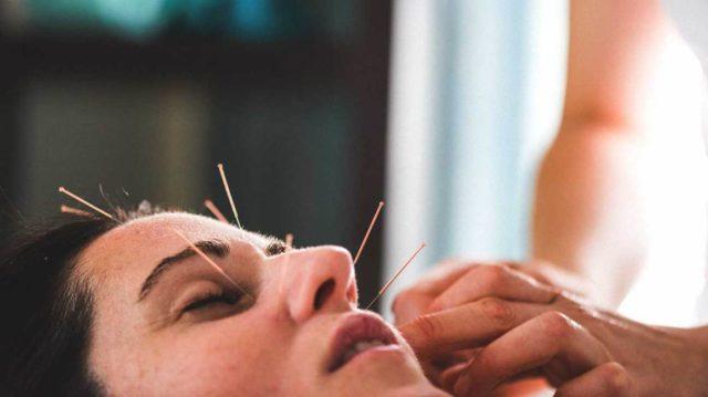 About Good Acupuncturist