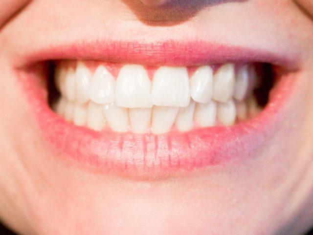 get rid of cavities