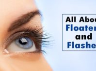 Floaters in Your Vision