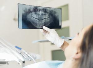 Digital X-ray for teeth