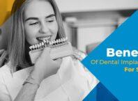 Benefits Of Dental Implantation For Seniors